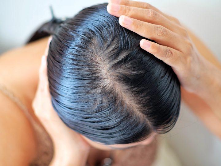 Excès de sébum : voici LE meilleur shampoing pour vos cheveux gras
